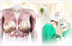 韩国MD整形医院隆胸术