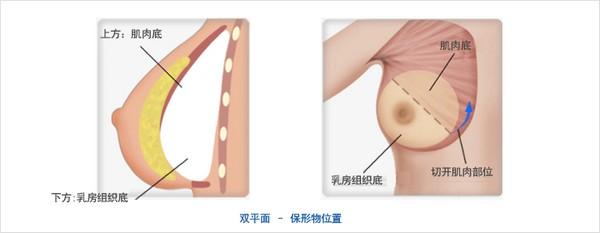 假体隆胸手术示意图