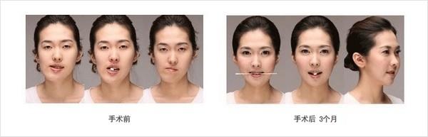 脸型轮廓不对称矫正对比图