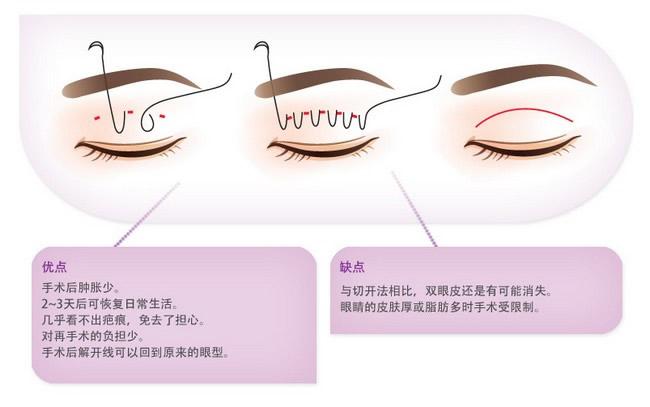 BK埋线法双眼皮示意图