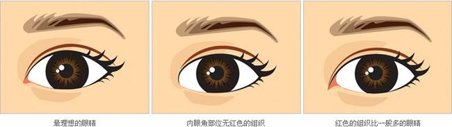 开眼角手术