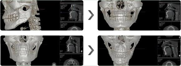3D立体四方脸矫正术