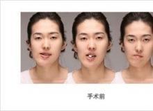 脸型轮廓不对称矫正