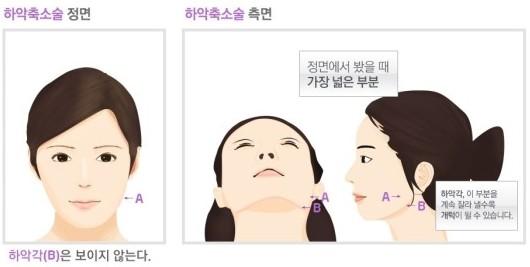 陈熏院长解读韩国下颌角缩小术真正魅力