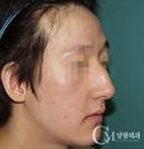 鞍鼻矫正手术案例对比图