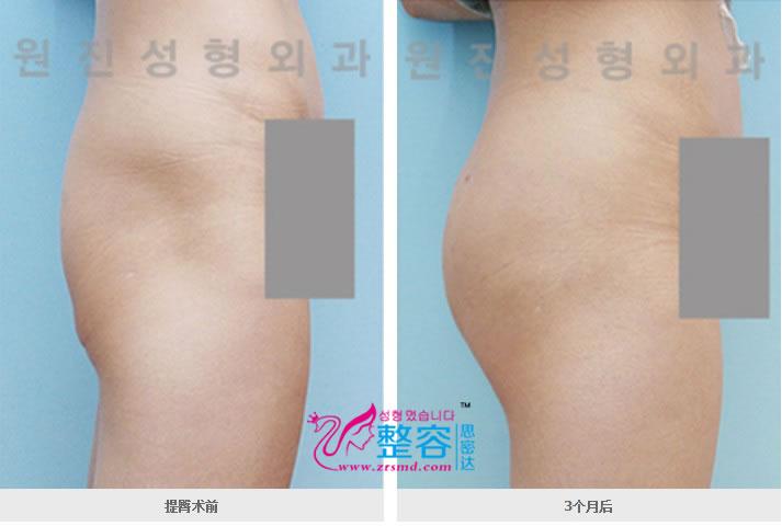 提臀术前后对比案例图