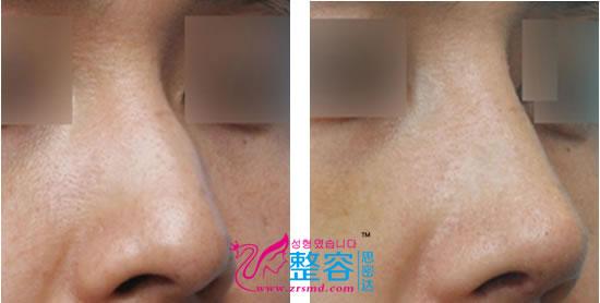 男性歪鼻手术对比案例图