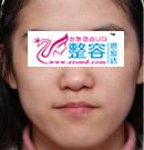 下颌角整形手术对比案例