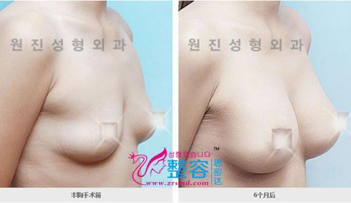 丰胸手术前后对比案例图