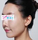 鼻子修复手术前后对比照片