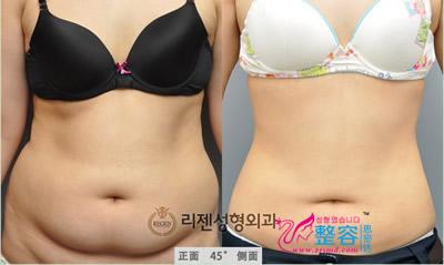 腰腹吸脂整形对比案例