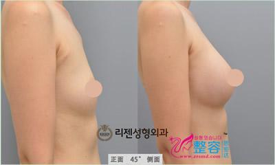 丰胸整形手术对比案例