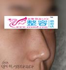 隆鼻整形手术对比图