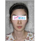面部轮廓整形案例对比照片