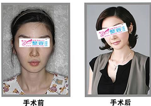 面部轮廓整形手术对比图