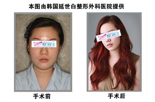 下颌角整形手术对比图