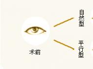 眼部整形手术项目一览