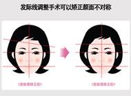 发际线调整手术可以矫正颜面不对称
