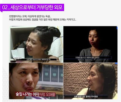 杭州周周健康网 春日暄和 > 韩国是不是有个芭比整形外科医院   面部