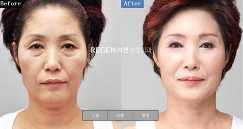 韩国李真希脸部整形专家