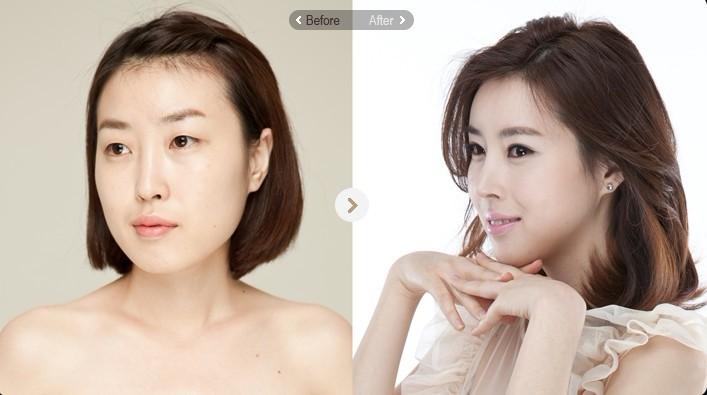 杭州周周健康网 春日暄和 > 韩国g皮肤整形医院和墨镜皮肤科医院哪家