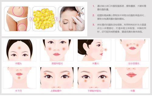脸部组织结构进针度