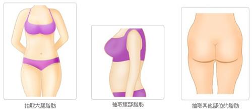 韩国脂肪移植哪家医院好