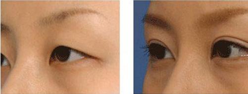 切开双眼皮术后六大注意事项