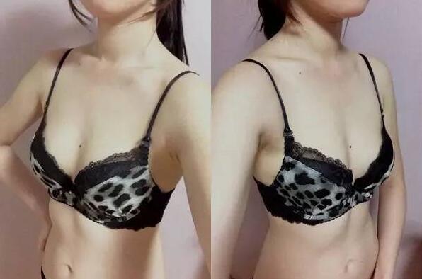 假体隆胸后会留疤痕吗?分享韩国原辰假体隆胸整形案例!