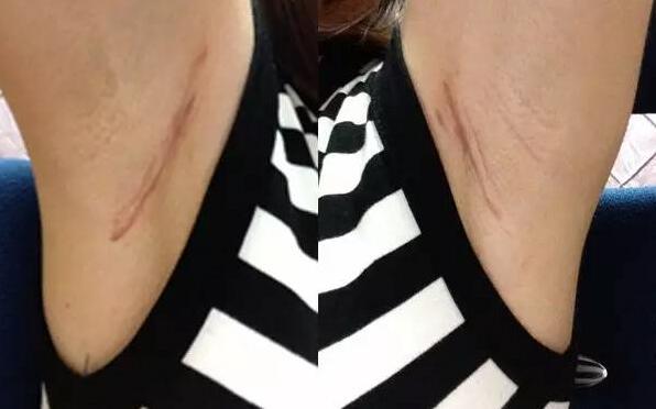 韩国原辰假体隆胸手术后2个月