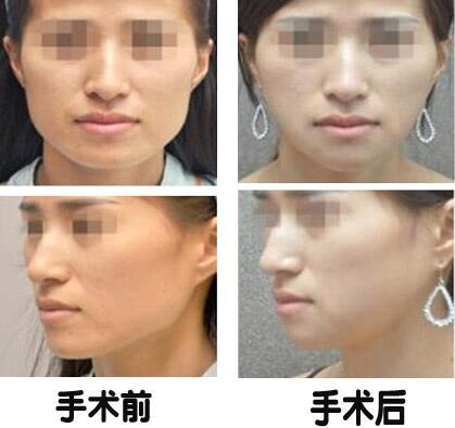 四方脸矫正