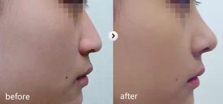 艾恩整形外科隆鼻案例