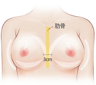 假体隆胸肋骨3厘米