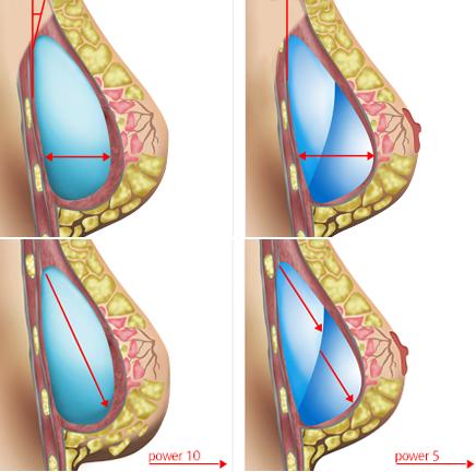 隆胸假体放置理想位置