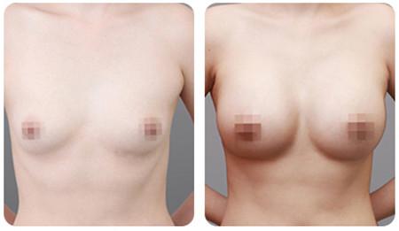 韩国原辰整形医院假体隆胸案例对比图