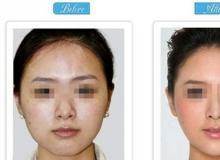 怎么能消除脸部的雀斑脸上雀斑除去好办法_怎样除掉脸上的黄褐斑价格大约多少RMB