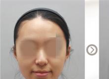 假体硅胶鼻子整形多少钱