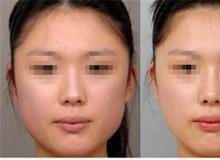 自体脂肪填充脸颊主要有什么效果