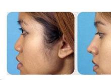 硅胶垫鼻术与膨体隆鼻术各自的价钱是多少