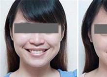 玻尿酸丰面颊改善后美容效果到底如何